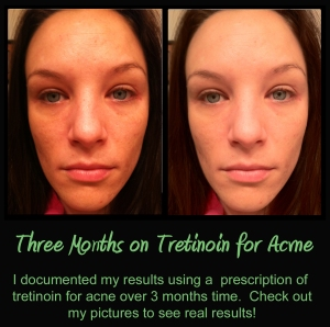 real results with tretinoin, tretinoin for acne, my experience with tretinoin
